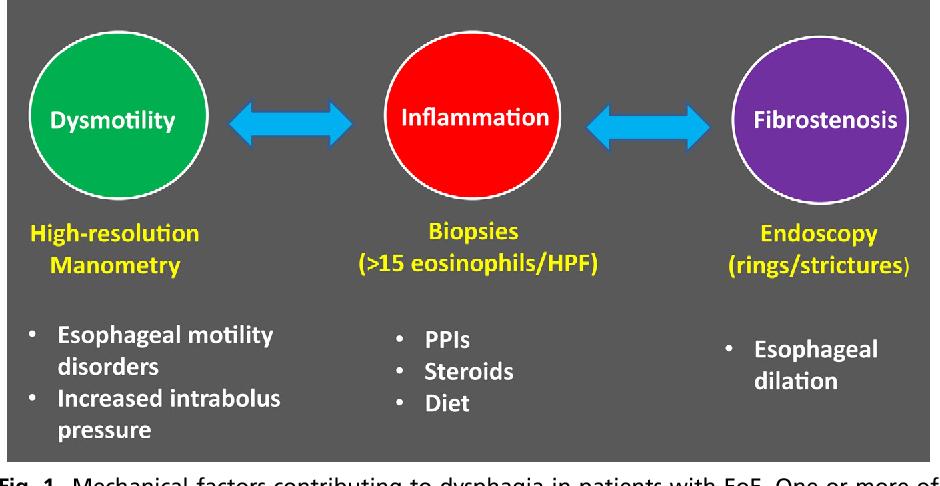 Endoscopic Treatment Of Eosinophilic Esophagitis Semantic