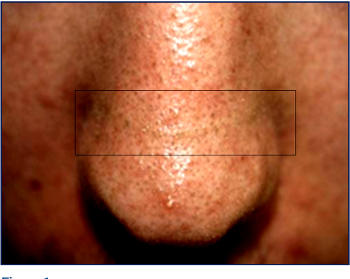 Figure 1 from Atypical