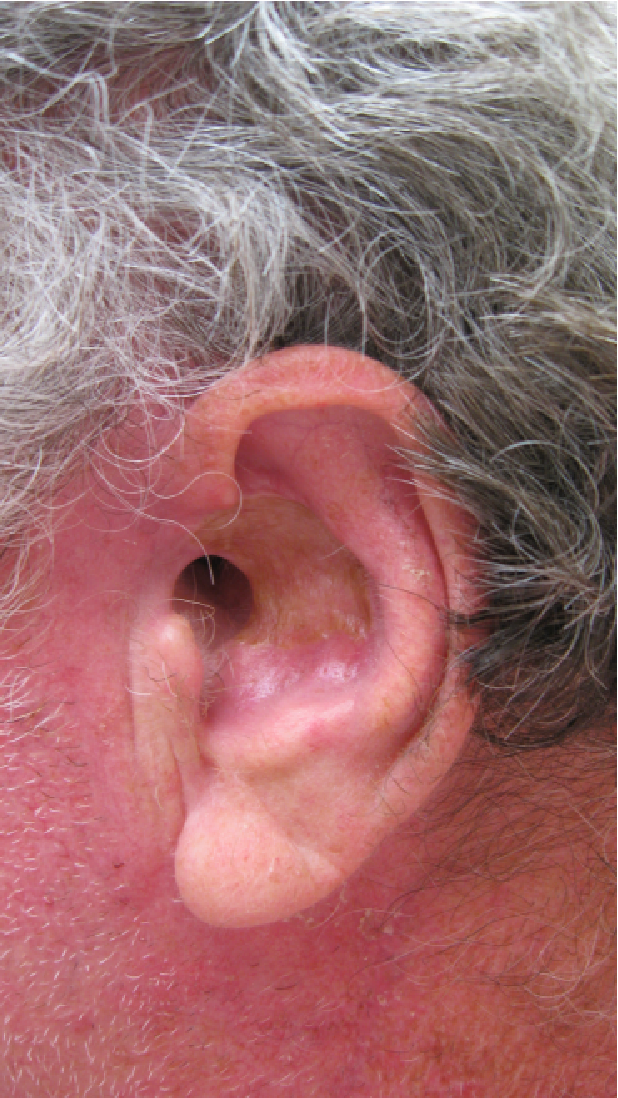 squamous cell carcinoma developing from an epidermoid cyst