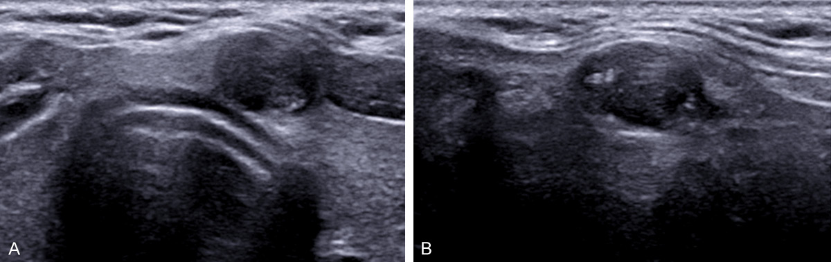 Figure 2 From Ultrasound Findings For Papillary Thyroid Carcinoma