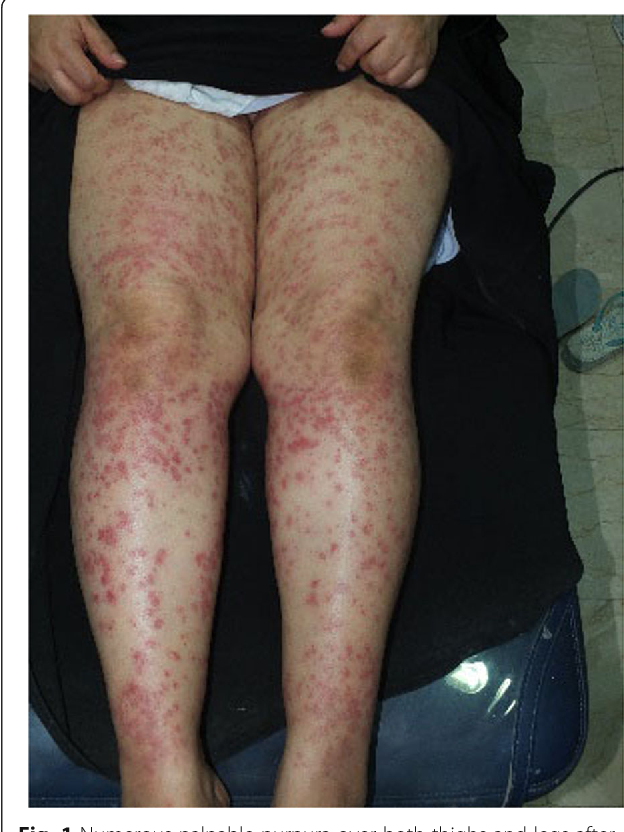 Figure 1 From Purpura Induced By Laser Hair Removal A Case Report