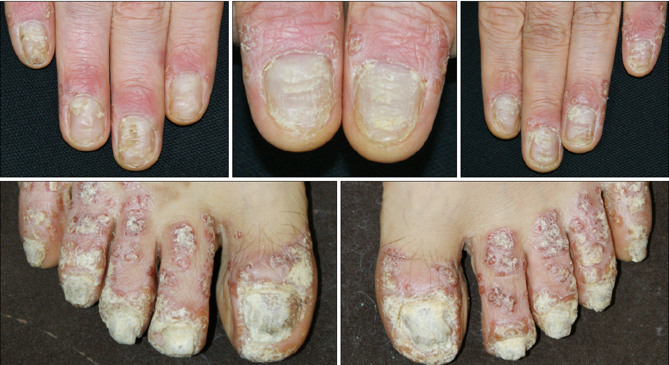 Figure 1 from Severe Nail Fold Psoriasis Extending from Nail ...