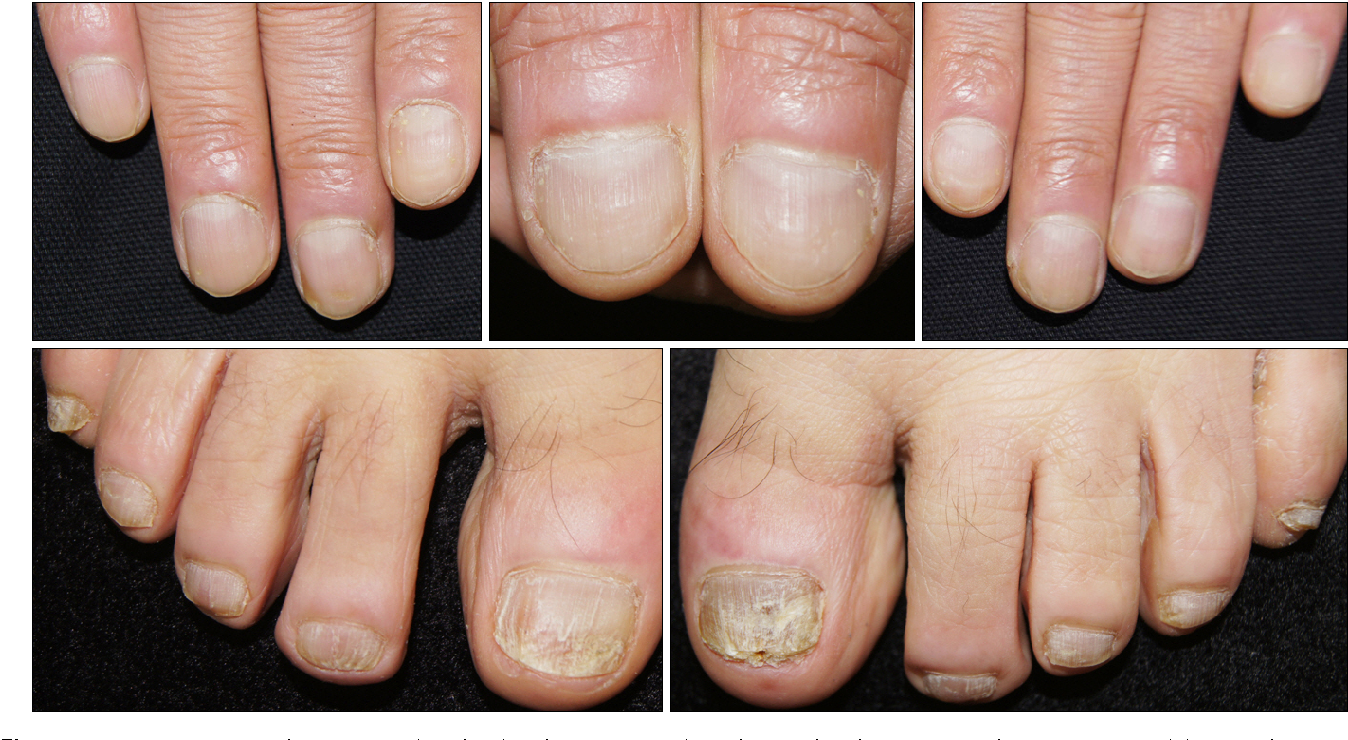 Figure 2 from Severe Nail Fold Psoriasis Extending from Nail ...