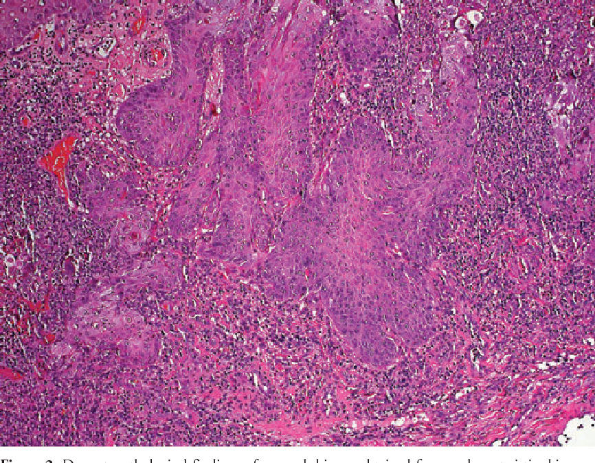 Figure 2 from HPV-73- and HPV-82 positive anal margin