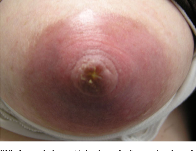 Figure 4 From Dermatoses Of The Breast In Lactation Semantic