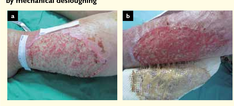 Figure 5 from Slough and biofilm: removal of barriers to