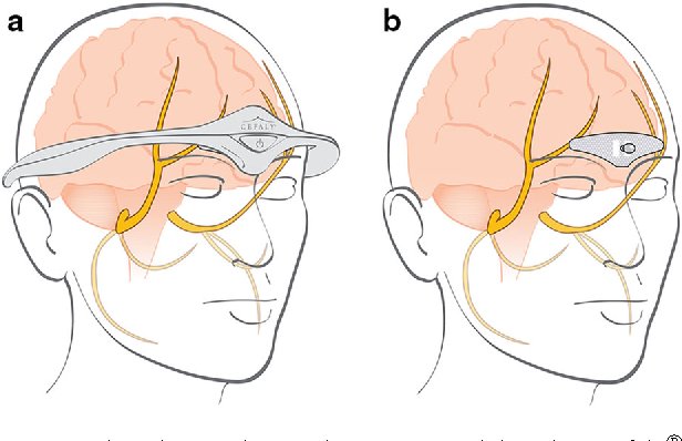 Fig. 1 The electrical impulses generated by the Cefaly device are transmitted via an electrode to excite the upper branches of the ophthalmic nerve (V1). These pictures are the property of Cefaly Technology