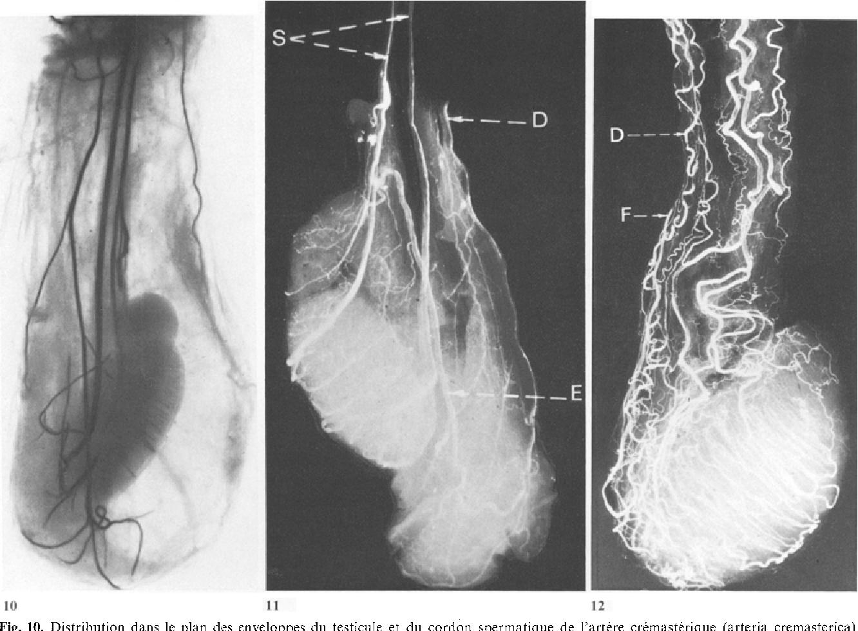 Figure 10 From Vascularisation Arterielle Du Testicule Et Chirurgie De L Ectopie Testiculaire Semantic Scholar