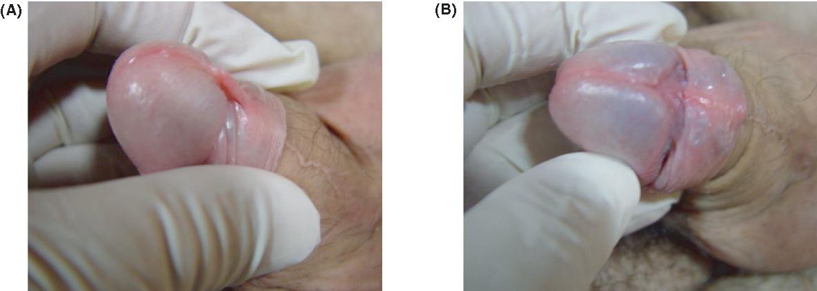 Laser CO2 frenuloplasty: a safe alternative treatment for
