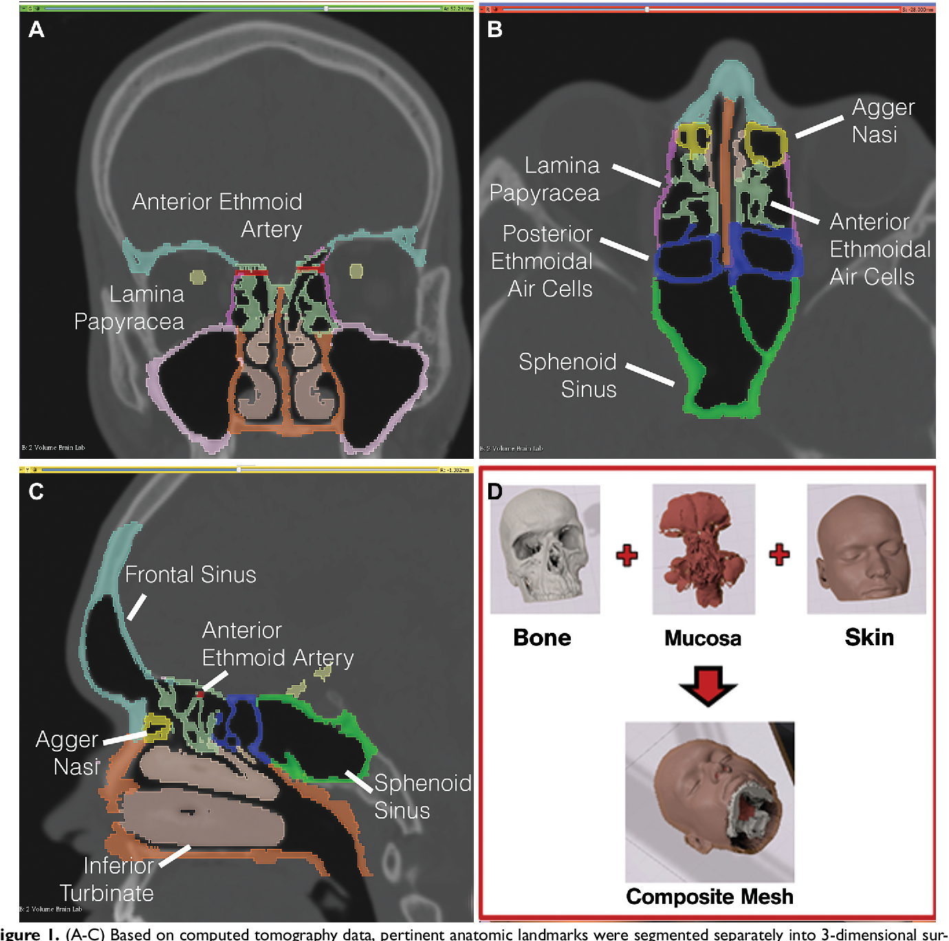 Pdf Virtual Functional Endoscopic Sinus Surgery Simulation With 3d Printed Models For Mixed Reality Nasal Endoscopy Semantic Scholar