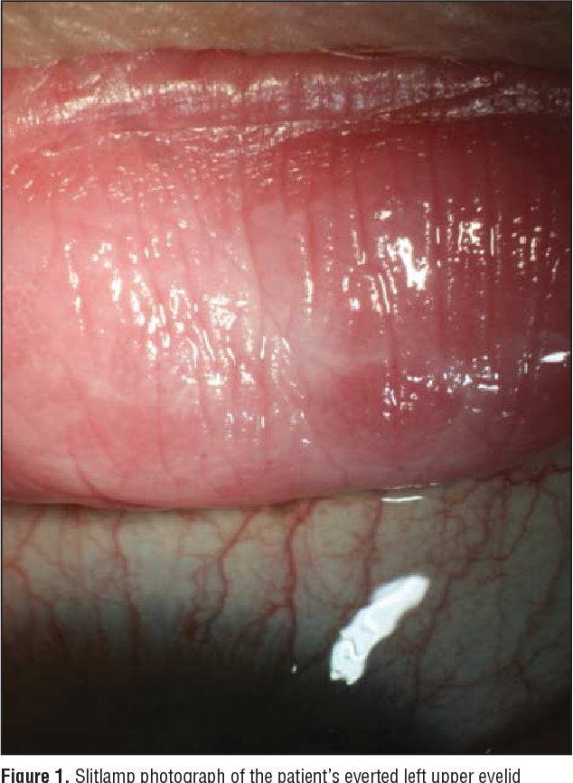 Figure 2 from Lichen simplex chronicus of the conjunctiva