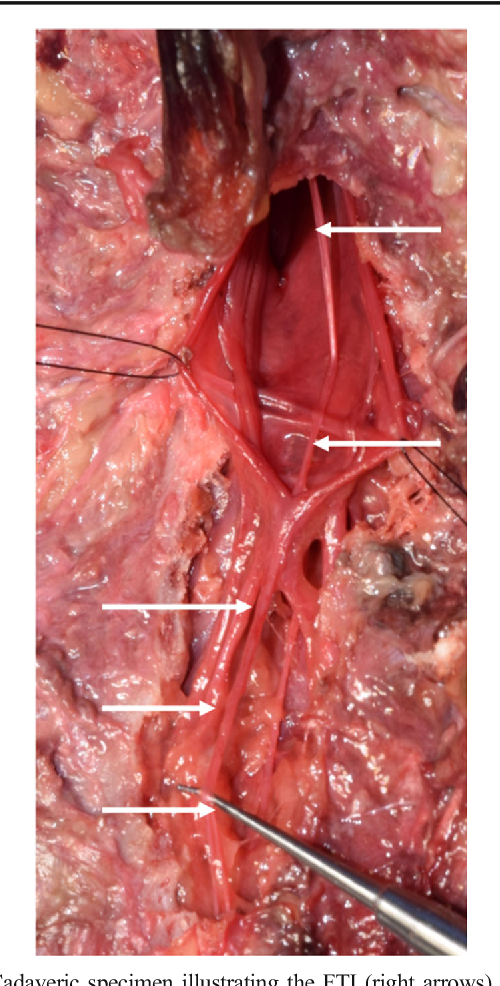 Mechanical Relationship Of Filum Terminale Externum And Filum Terminale Internum Is It Possible To Detether The Spinal Cord Extradurally Semantic Scholar Filum terminale'nin son 5 cm. filum terminale externum