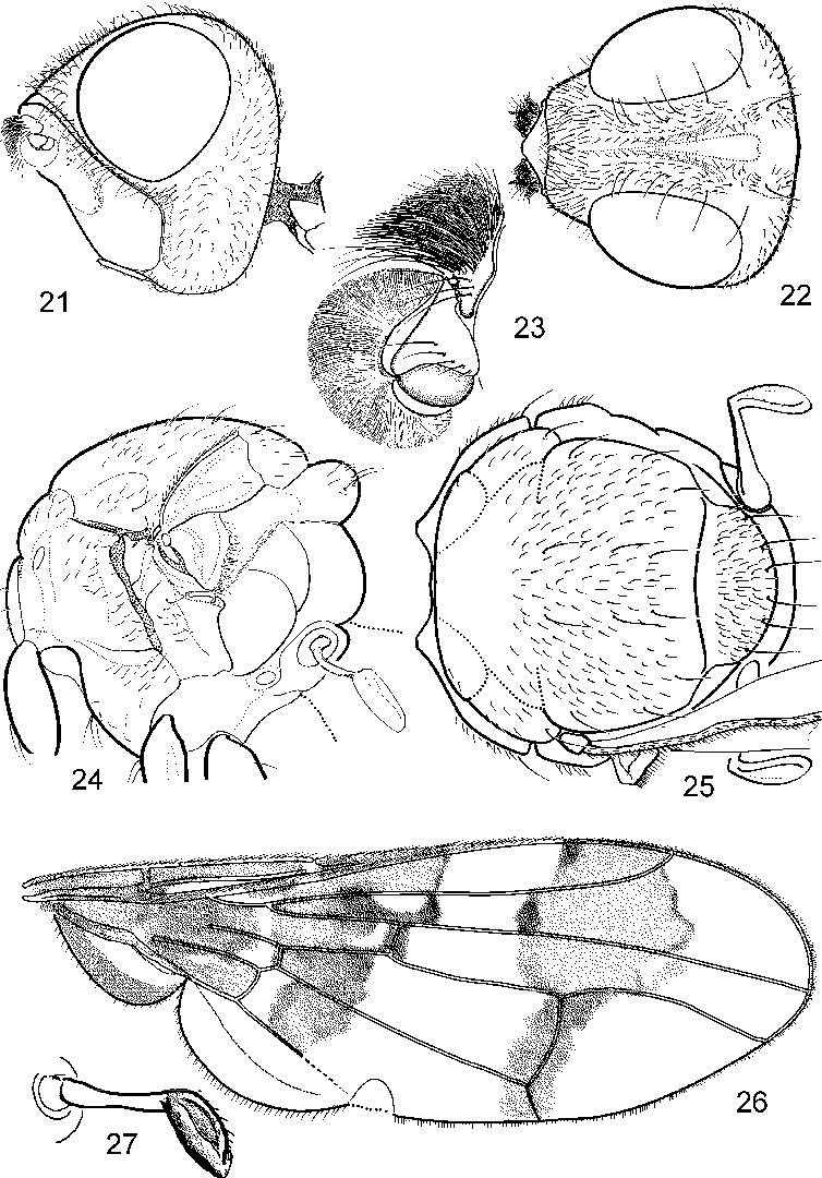 figure 21—27
