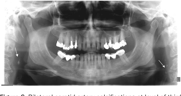 Figure 6 From Soft Tissue Calcified In Mandibular Angle Area