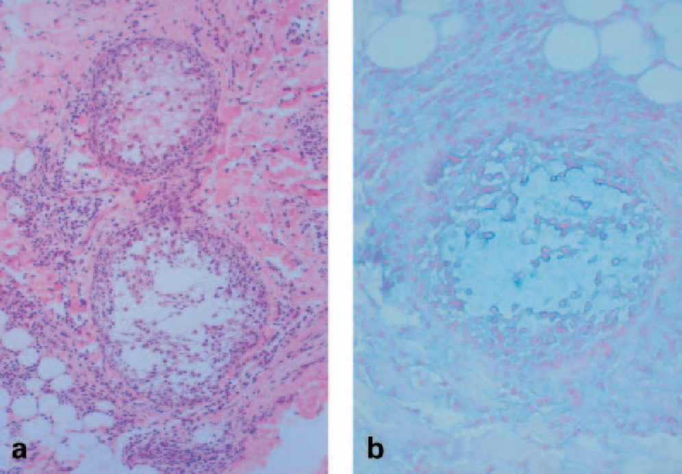 Figure 1 From Failure To Detect Clonality In Eosinophilic