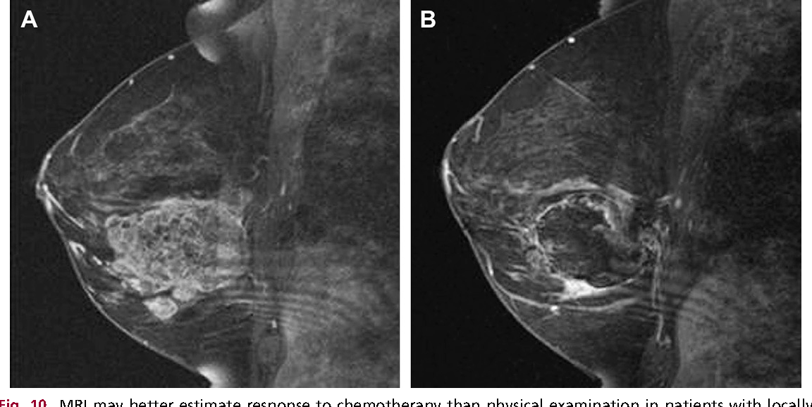 Figure 10 From Evolving Role Of Mri In Breast Cancer Imaging