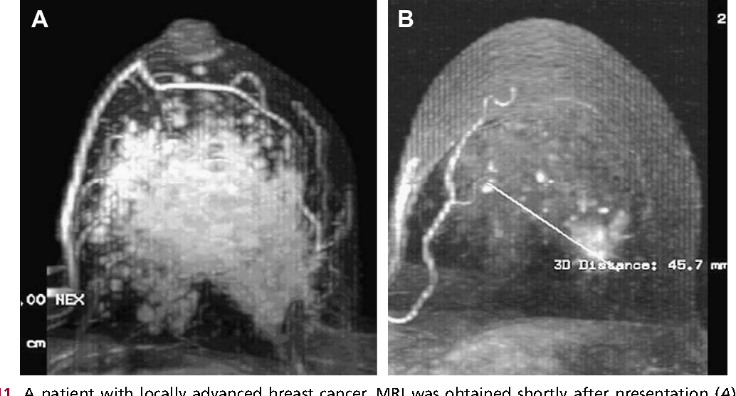 Figure 11 From Evolving Role Of Mri In Breast Cancer Imaging