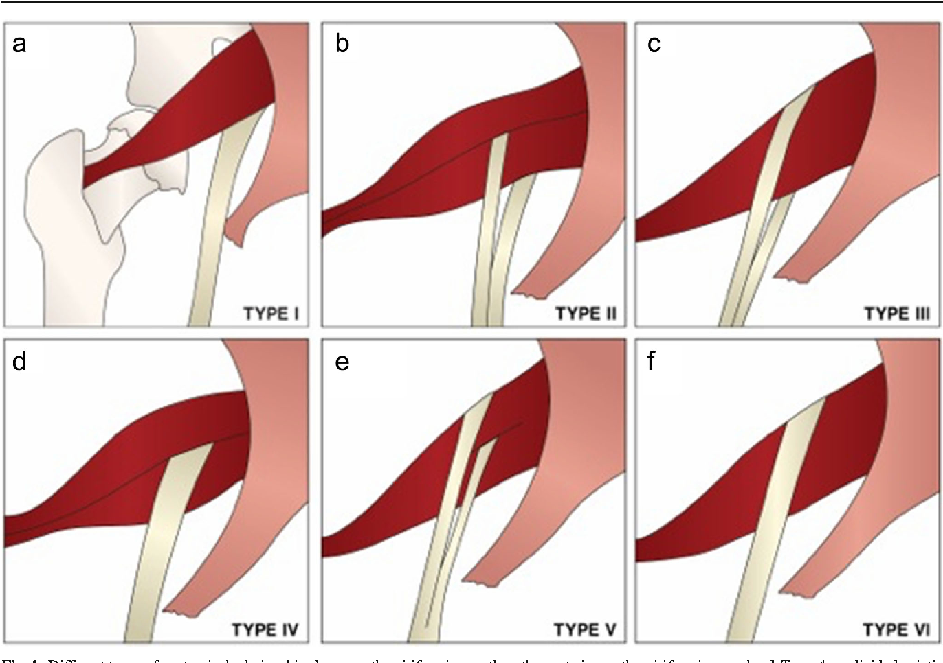 Figure 1 from Detection and prevalence of variant sciatic