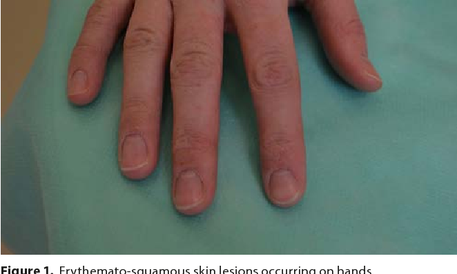 PDF] Contact eczema of hands caused by contact with potato