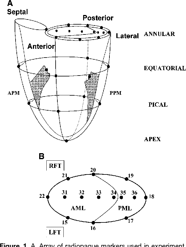 Figure 1 from Mitral annular dilatation and papillary muscle