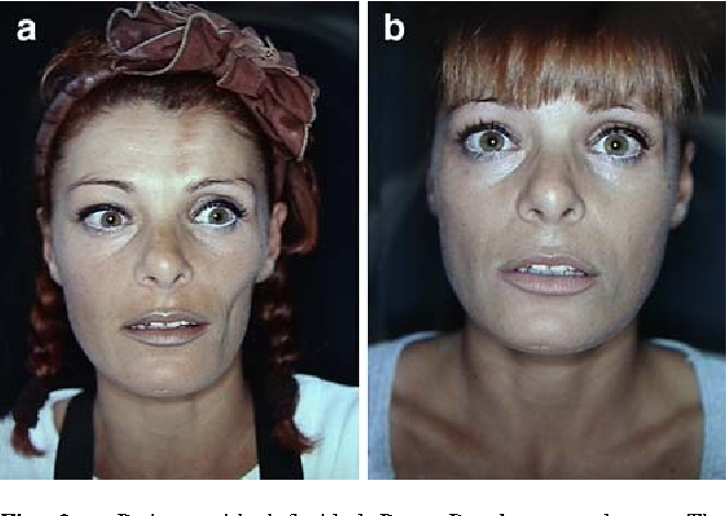 Figure 2 from Treatment of facial lipodystrophy syndromes