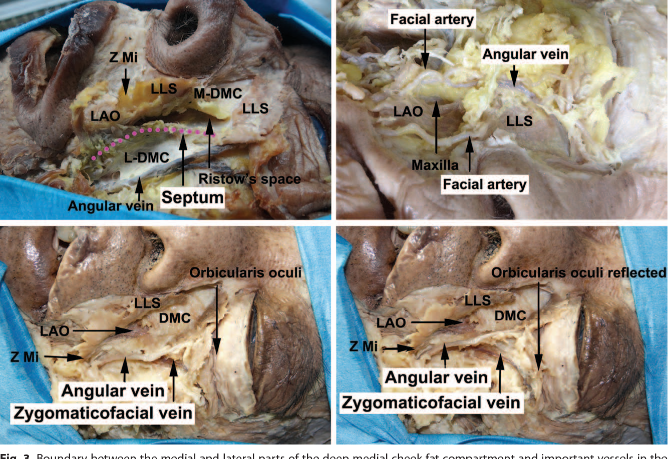 Figure 3 from Facial Contouring by Targeted Restoration of