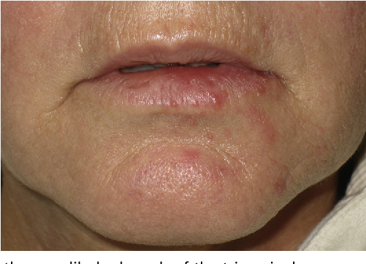 Figure 5 from Update on oral herpes virus infections