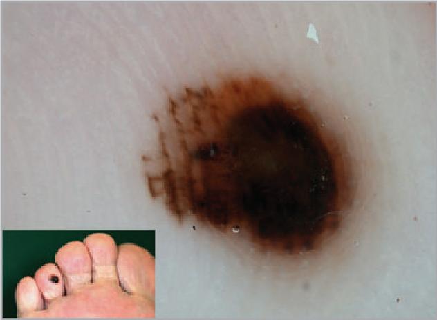 Figure 3 From Dermoscopic Features Of Acral Lentiginous