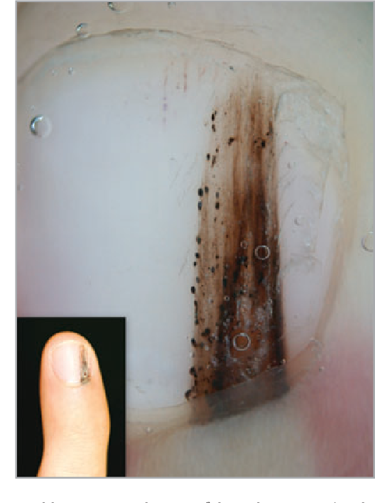 Figure 4 From Dermoscopic Features Of Acral Lentiginous