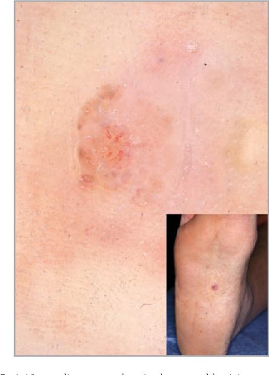 Figure 7 From Dermoscopic Features Of Acral Lentiginous