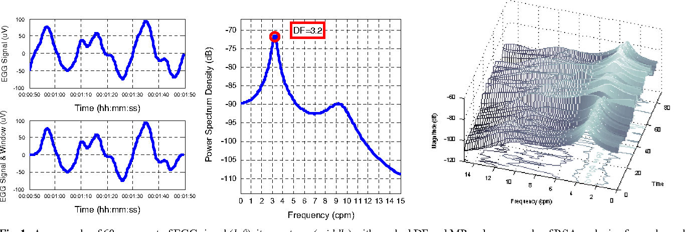 Figure 1 from The Use of Continuous Wavelet Transform Based