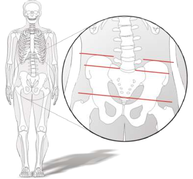 figure 147