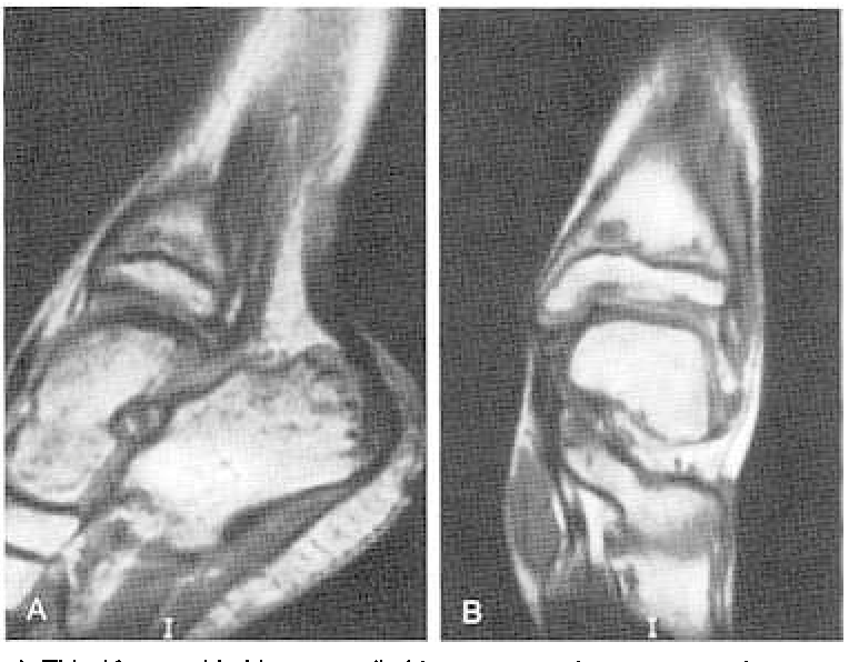 Sports Injuries in Children and Adolescents (Medical Radiology)