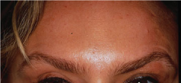 Figure 5 from Facial filler and neurotoxin complications