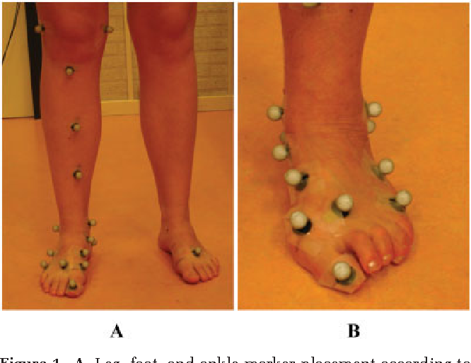 Pdf Foot And Ankle Kinematics In Rheumatoid Arthritis Influence Of Foot And Ankle Joint And Leg Tendon Pathologies Semantic Scholar