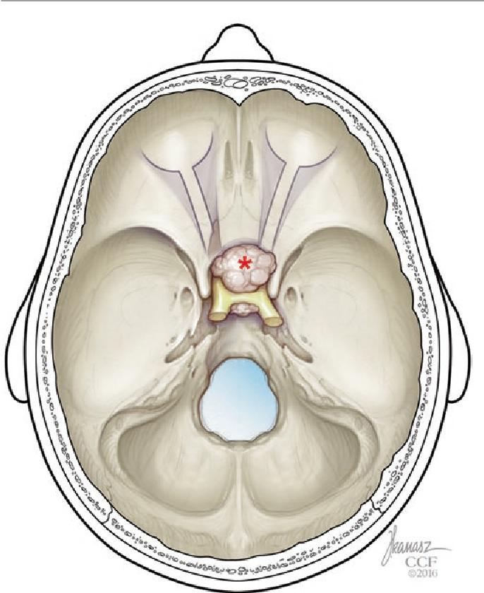 figure 17.18