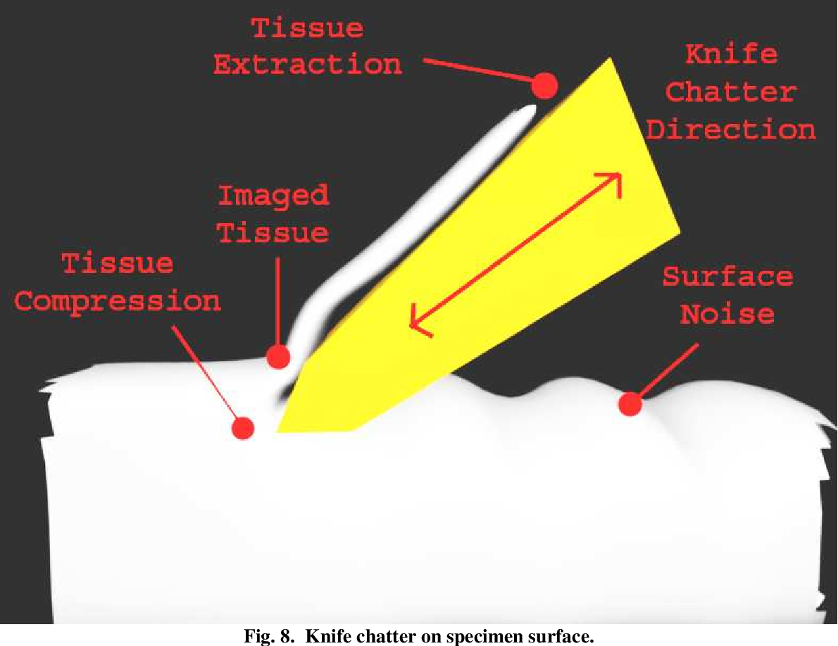 PDF] Acquisition and reconstruction of brain tissue using knife ...