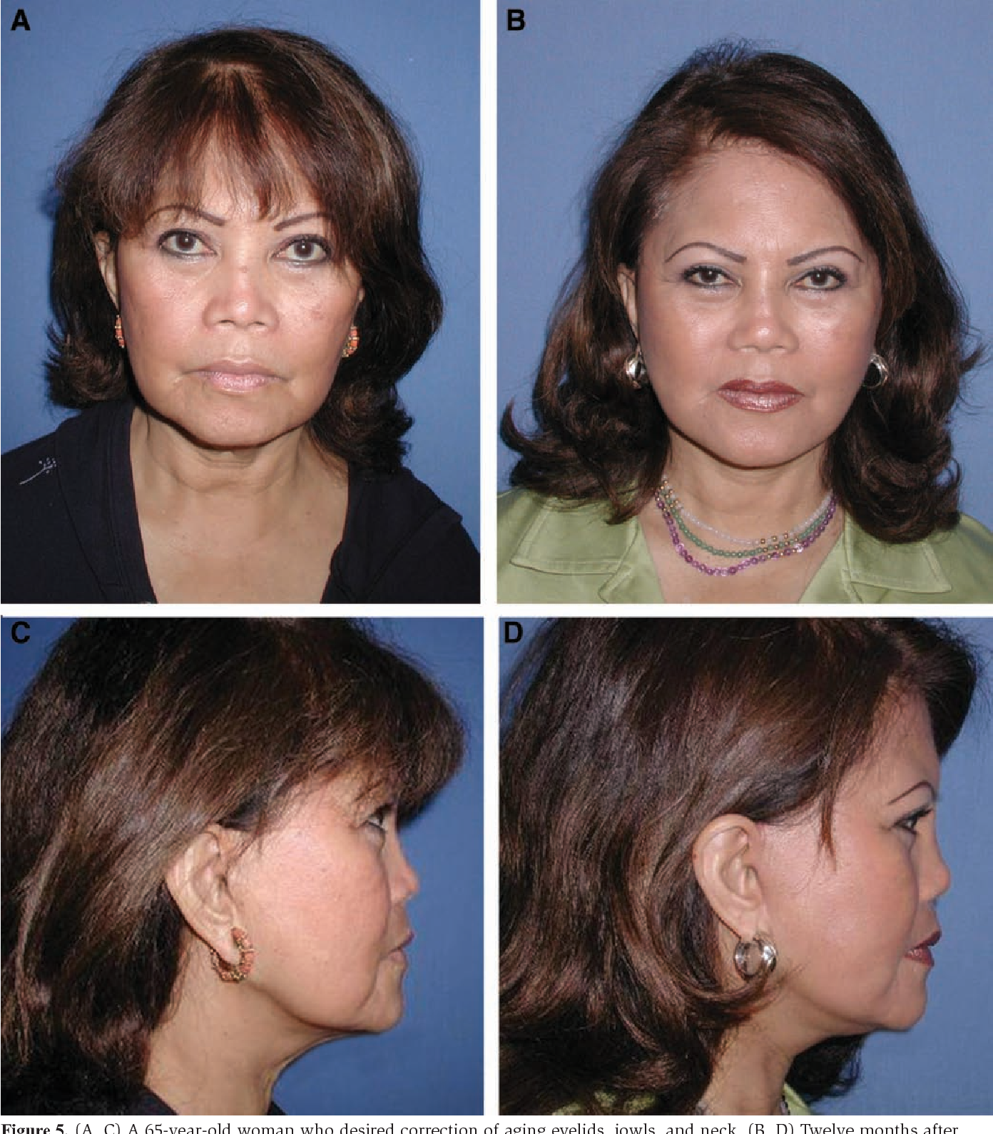 [PDF] Orbitomalar suspension during high SMAS facelift ...