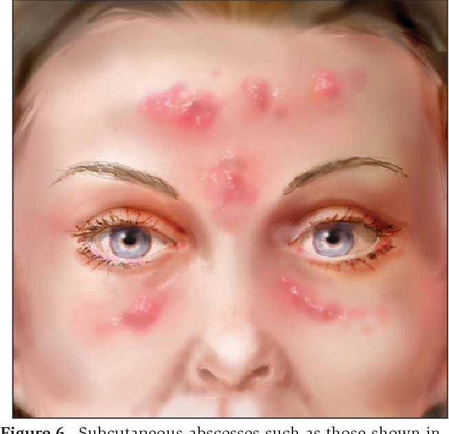 Figure 6 from Complications of injectable fillers, part I