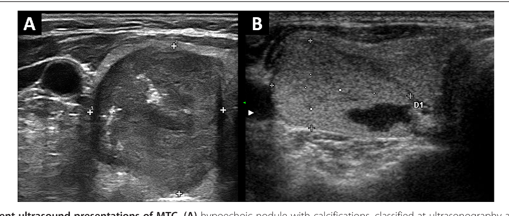 Pdf Ultrasound Features Of Medullary Thyroid Carcinoma Correlate