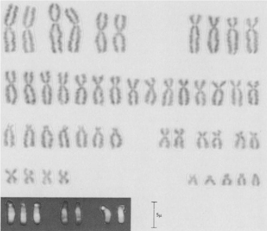 figure XIV