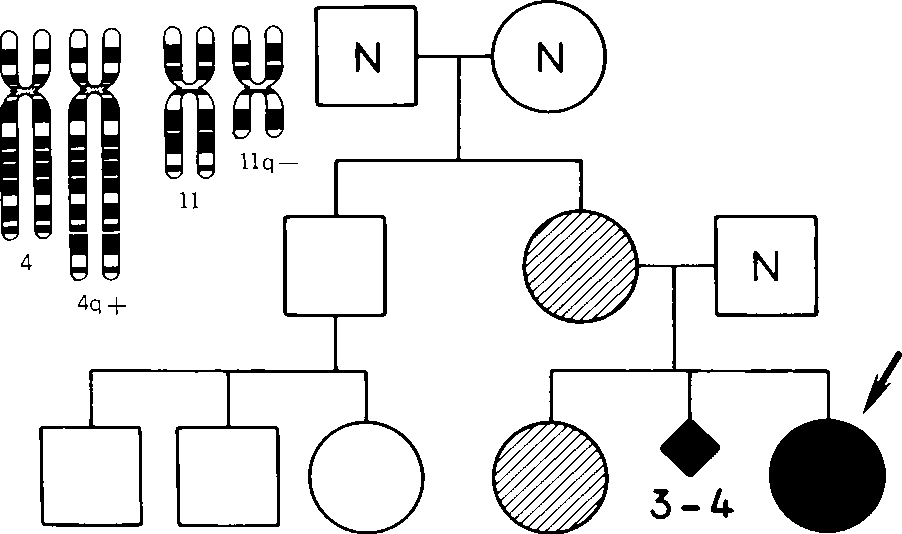 figure XVII