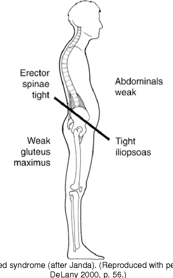 Figure 8 4 From Chapter 8 Differential Diagnosis Myofascial Pain Syndrome Semantic Scholar