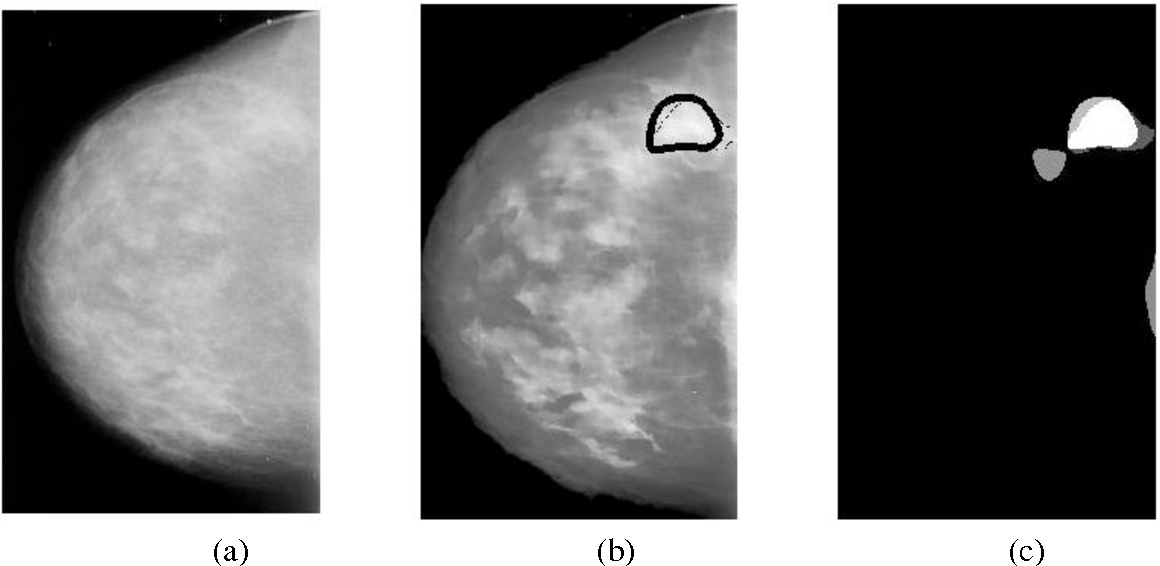 Figure 6 From Breast Cancer Detection With Gabor Features From Digital Mammograms Semantic Scholar