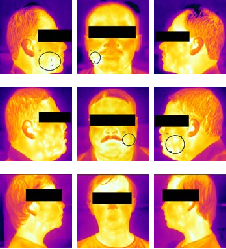 Figure 1 From A New Approach Of Oral Cancer Detection Using Bilateral Texture Features In Digital Infrared Thermal Images Semantic Scholar