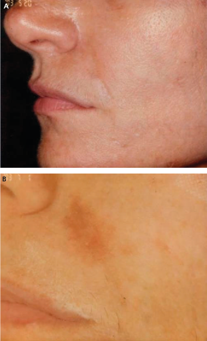 Figure 1 from Adverse reactions to dermal fillers: review
