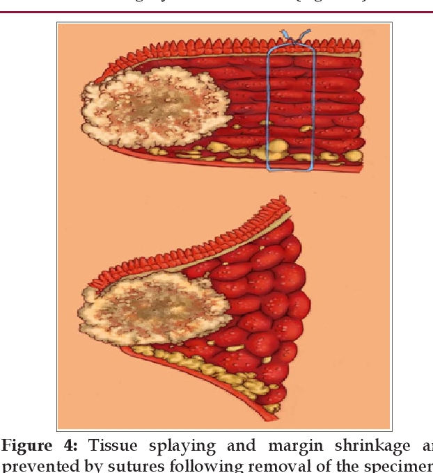 Pdf Improved Early Stage T1 2 Oral Tongue Cancer Medialpathology Margins Using Horizontal Mattress Suturetechnique Semantic Scholar