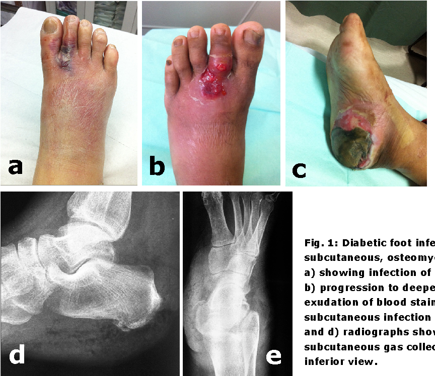 Pdf Bacteriological Study Of Diabetic Foot Infections Semantic