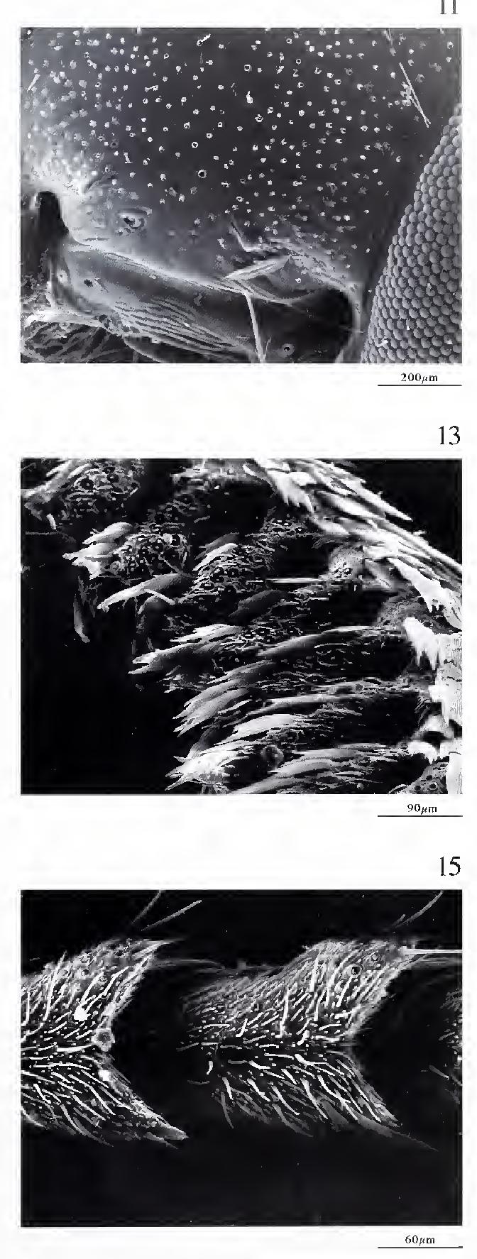 figure 11-15
