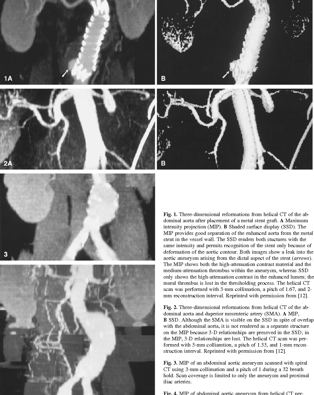 Spiral CT of the Abdomen